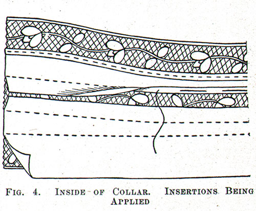 Figure 4: Inside of Collar. Insertions Being Applied.
